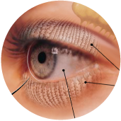Black lines point to different parts of the eye.