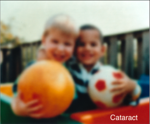 image tagged with cataract, disease, eye, young, kids, …;