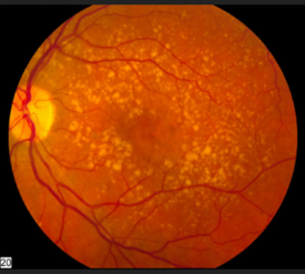 image tagged with eye, age-related macular degeneration, microscope, vision, science, …;