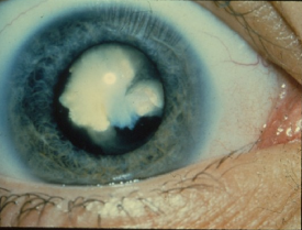 image tagged with sclera, congenital cataract, vision, eye, vision loss, …;