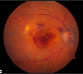 image tagged with eye disease, eye, anatomy, age-related macular degeneration, science, …;