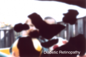 image tagged with lens, disease, diabetic retinopathy, simulation, sight, …;