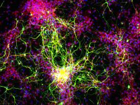 image tagged with eye, retinal ganglion cells, science, vision, nerve cells, …;