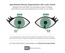 image tagged with disease, eye, age-related macular degeneration, health, infographic, …;