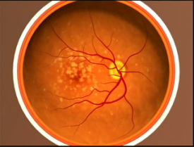 image tagged with age-related macular degeneration, eye, science, anatomy, microscope, …;