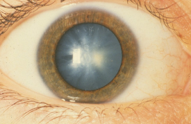 image tagged with cataracts, white congenital cataract