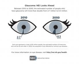 image tagged with information, infographic, glaucoma, eye, disease, …;