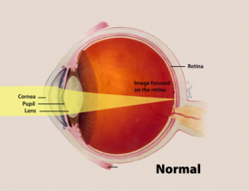 image tagged with diagram, infographic, pupil, cornea, normal, …;
