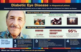 image tagged with age-related macular degeneration, espanol, diabetic retinopathy, cataract, vision, …;