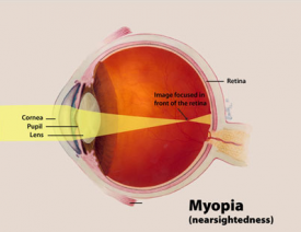 image tagged with eye, anatomy, myopia, pupil, diagram, …;