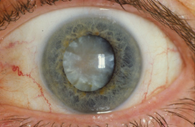 image tagged with cataract