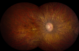 image tagged with microscope, research, science, retinal disease, eye disease, …;